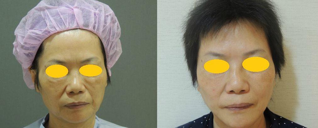 複合式 鬱金香拉皮手術