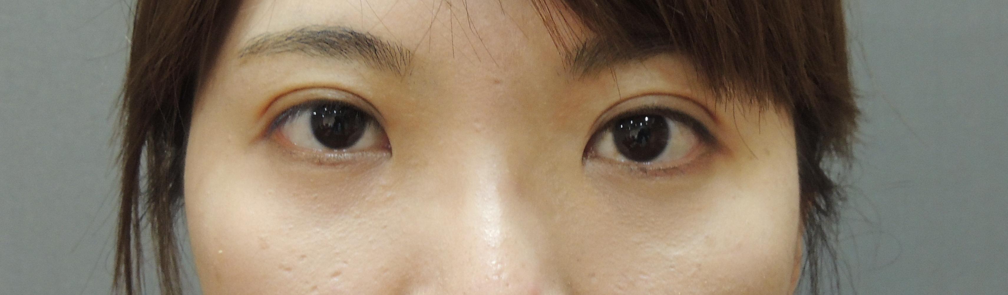 訂書機雙眼皮