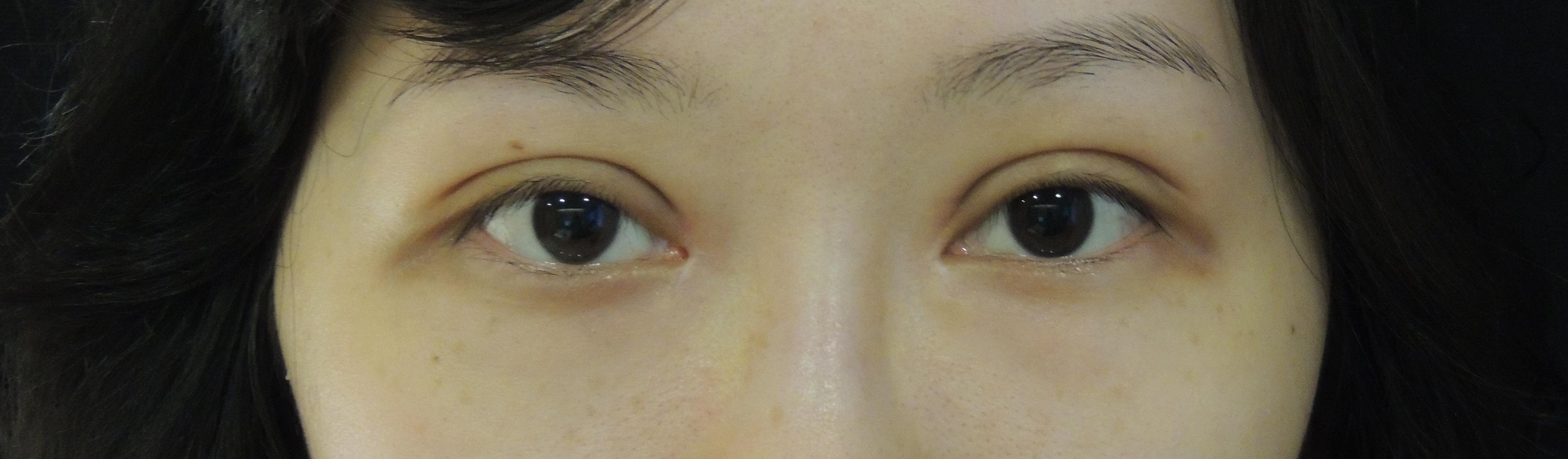 訂書針縫雙眼皮手術+開眼頭手術
