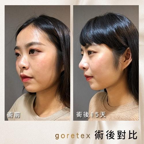 三段式隆鼻, 結構式隆鼻