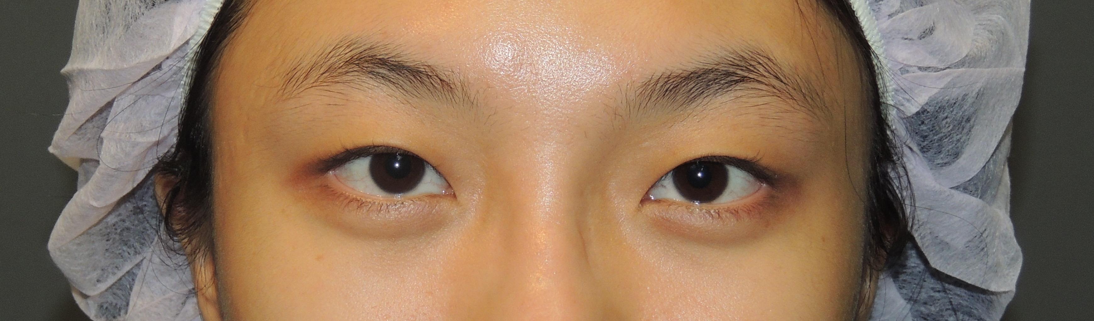 訂書針縫雙眼皮+開眼頭