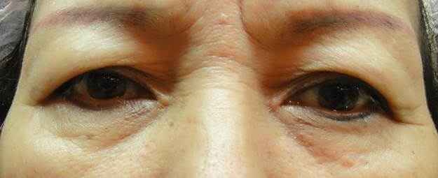 老化性割雙眼皮