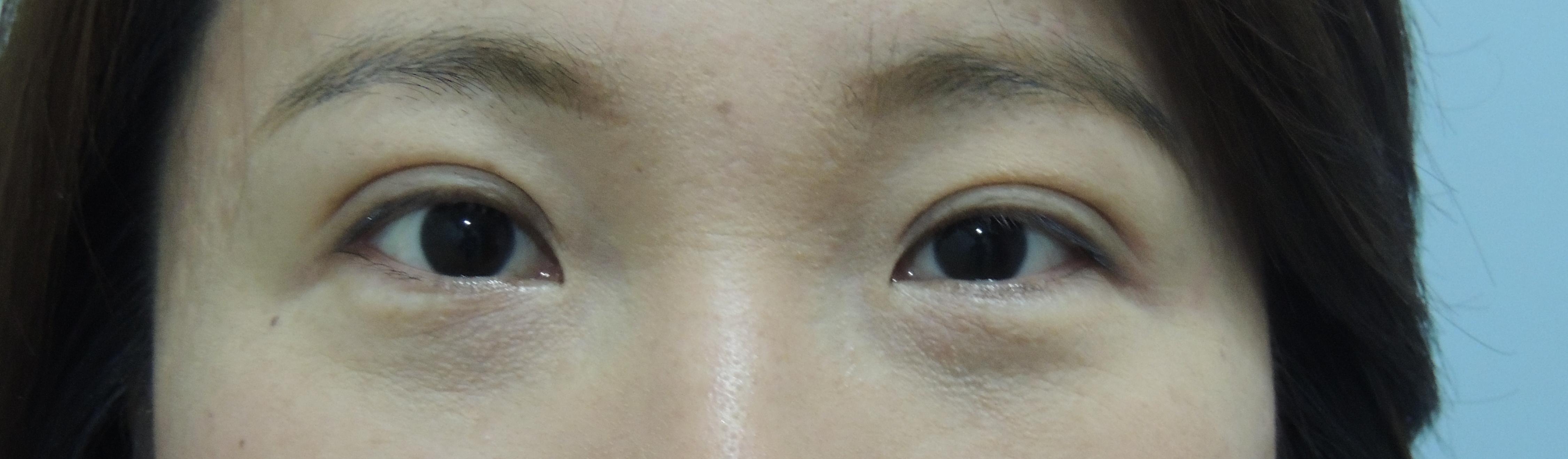 訂書針縫雙眼皮