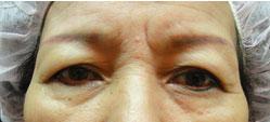 雙眼皮老化鬆弛下垂(Dermatochalasis)