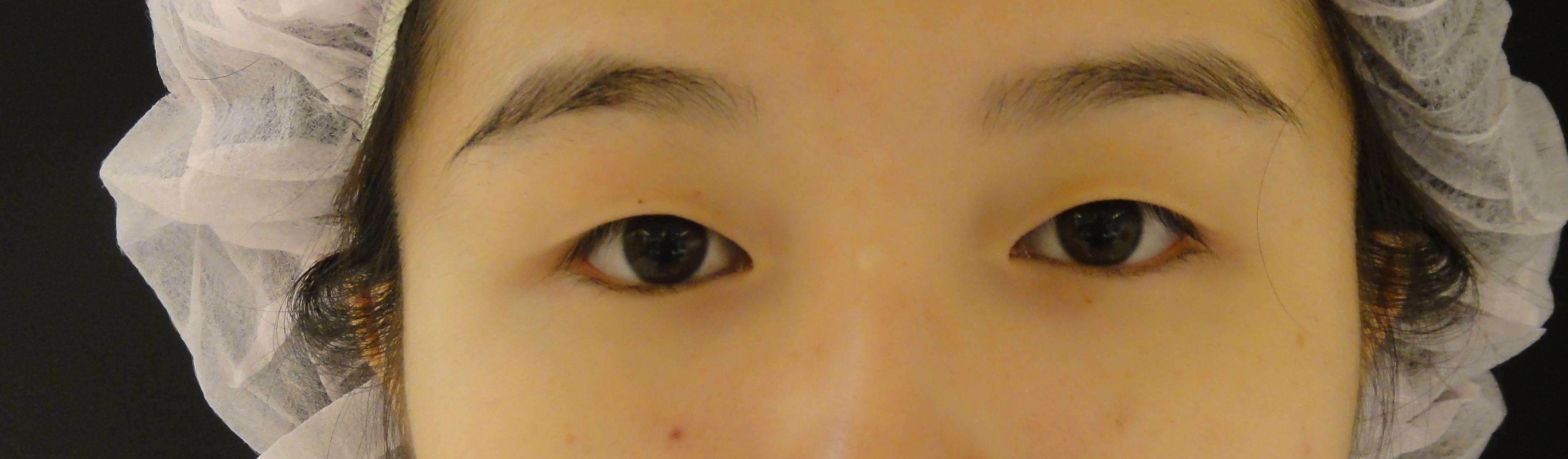 訂書針縫雙眼皮 手術