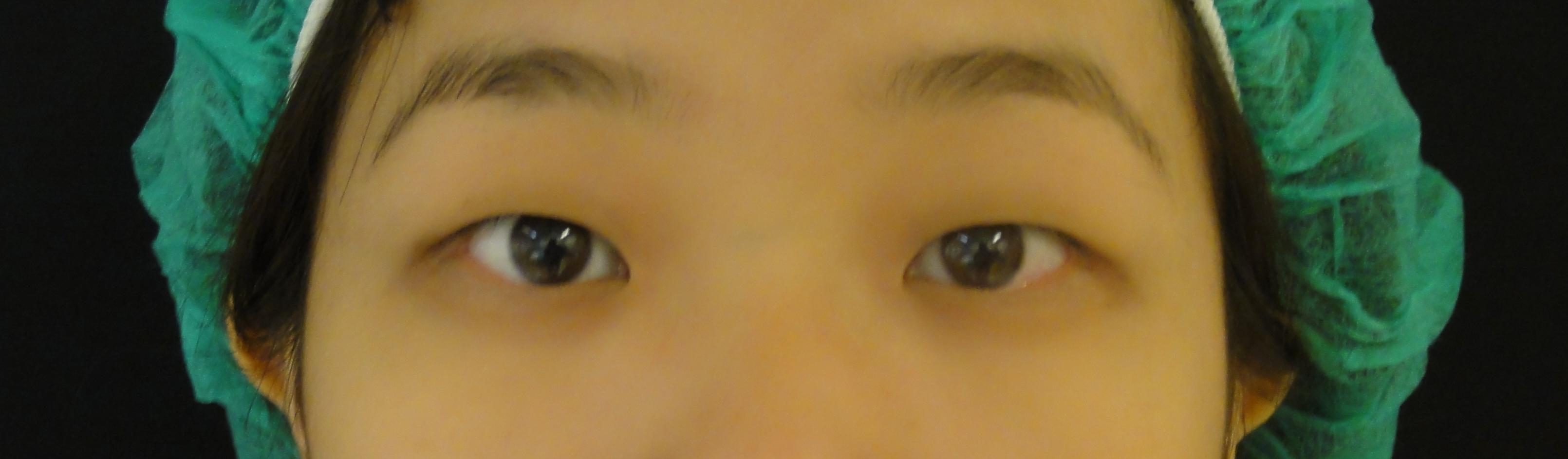 2+1訂書針縫雙眼皮