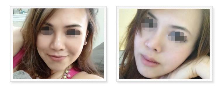 三段式隆鼻-進階版韓式隆鼻