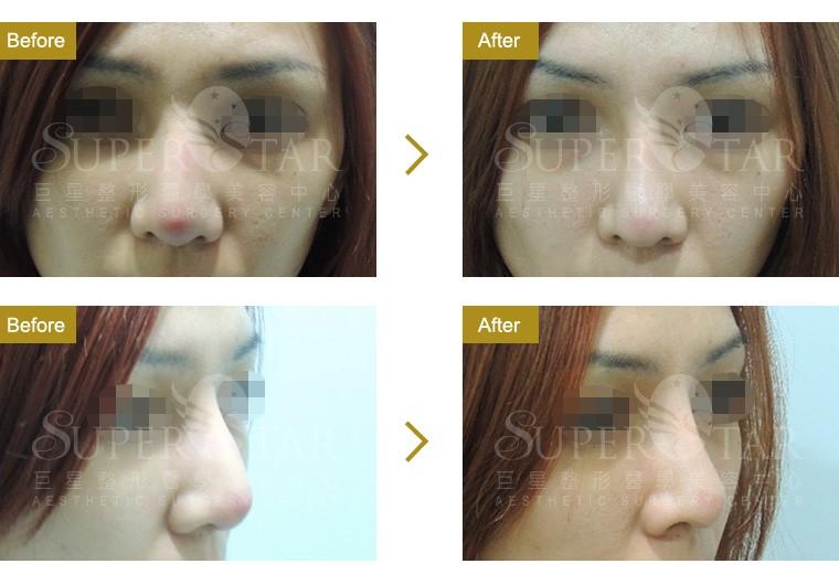 二次鼻整形 - 隆鼻重修