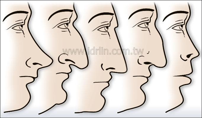 常見的隆鼻鼻型
