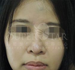 X5韓式隆鼻