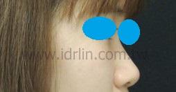 韓式隆鼻 術前