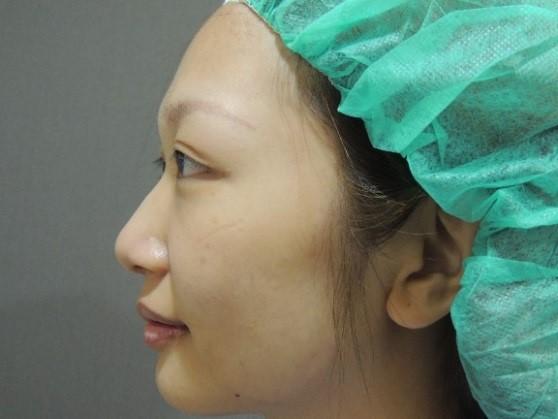 韓式隆鼻案例