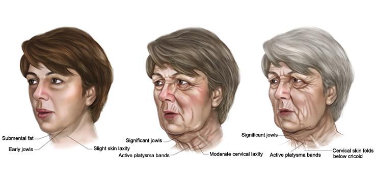 臉部老化下垂 - 拉皮