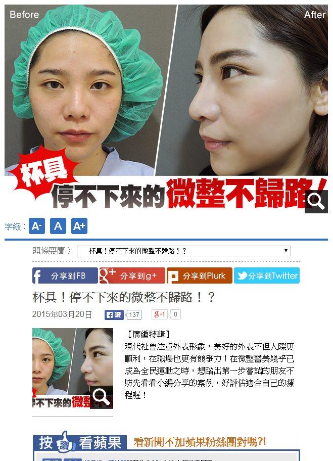 林敬鈞醫師接受蘋果專訪談隆鼻手術與微晶瓷隆鼻
