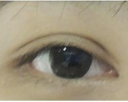 縫雙眼皮+開眼頭 => 平行大外雙(開放式雙眼皮)
