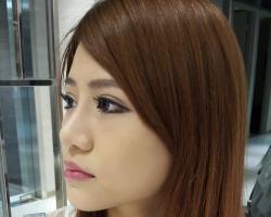 韓式隆鼻, 一體成形Goretex, 膨體, 二段式隆鼻 案例