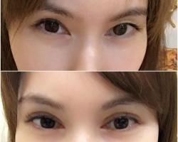 從蒙古折內雙變成完全的開放式雙眼皮