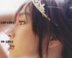 隆鼻標準化其中最重要的莫過於額鼻角和唇鼻角