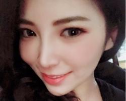 韓式隆鼻術後3個月, 山根立體, 五官精緻, 鼻形美,無死角