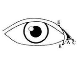 開眼頭, 蒙古折, 眼內眥
