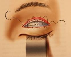 割雙眼皮,割雙眼皮手術