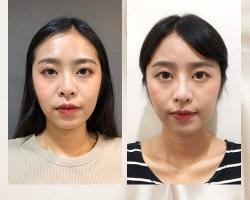 韓式 結構式隆鼻