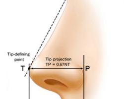 隆鼻手術成功的要件