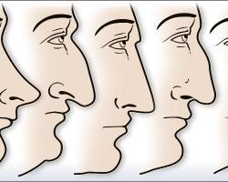 台灣人常見的隆鼻鼻型