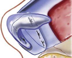 隆鼻各式常用軟骨移植