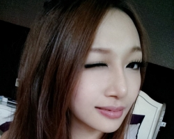 韓式隆鼻, 二段式隆鼻 案例